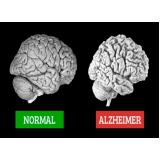 serviço de avaliação neuropsicológica em idosos Parque São Jorge